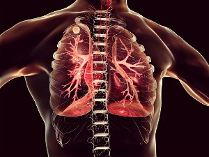 """New Cell Atlas of COVID-19 Pathology Reveals How the Coronavirus """"Wreaks Havoc in the Lungs"""""""