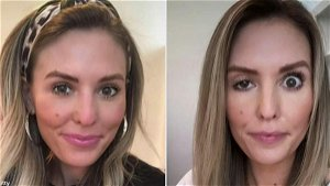 Botched Botox Patient Says She'll Get Injected Again