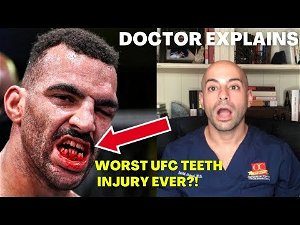 Photo | Devin Clark's mouth was a mess following UFC fight with Ion Cutelaba