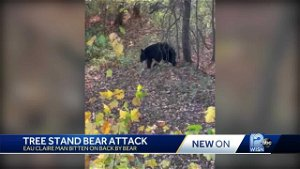 'Once he put his paw on my hip, then you become a little uneasy,' says baseball player bit by bear