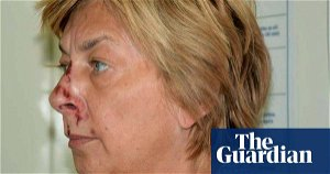 Croatian police solve mystery of woman with no memory found on rock
