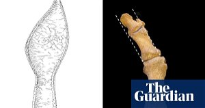 Fashion for pointy shoes unleashed plague of bunions in medieval Britain