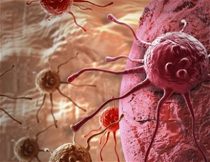 New mechanisms for treating impregnable KRAS mutant cancers with statins