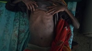 Ethiopia Denies There's a Famine in Tigray. We Obtained Photos Of Starving Children
