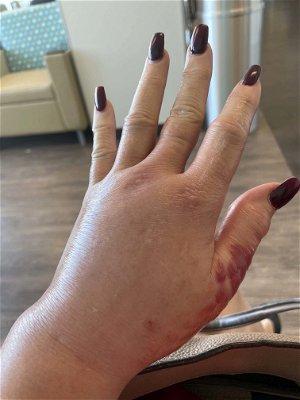 "RHOBH Alum Brandi Glanville Hospitalized for ""Infected Spider Bite"""